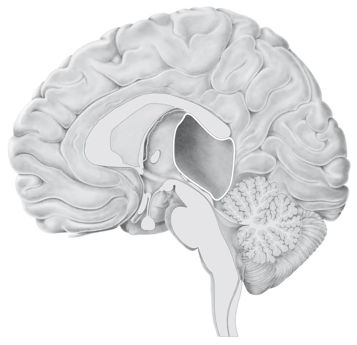 brein-cyste2