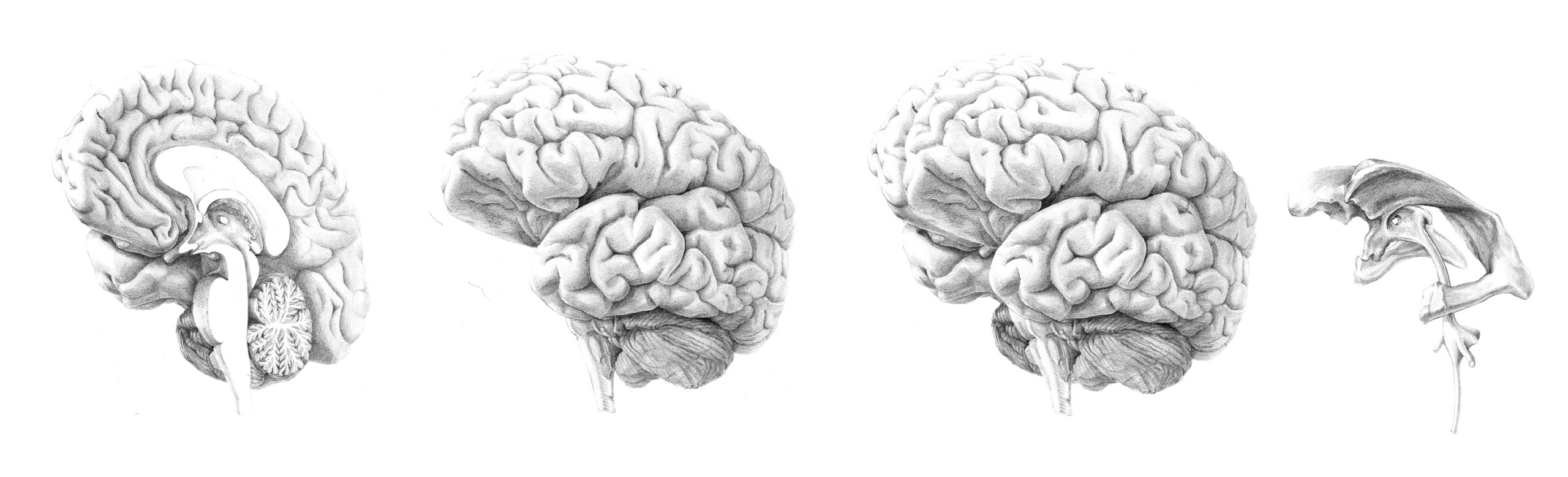 brein-portlood-overzicht